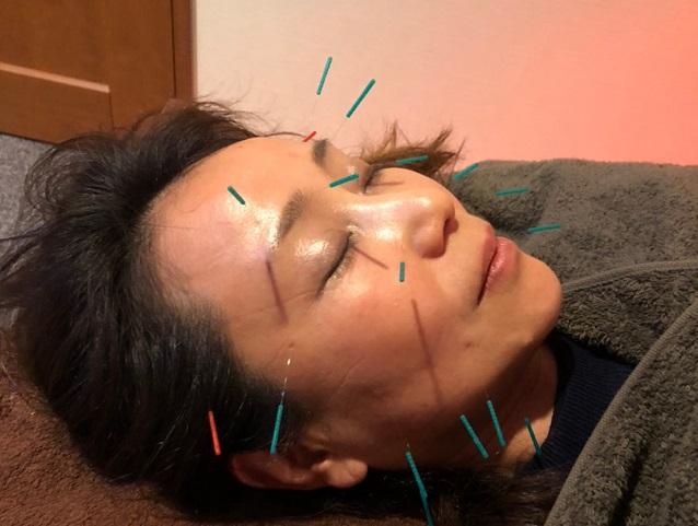 ❺お顔への鍼施術