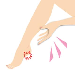 足底筋膜炎3