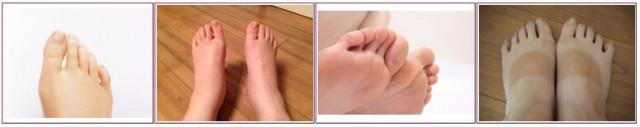 内反小趾の写真