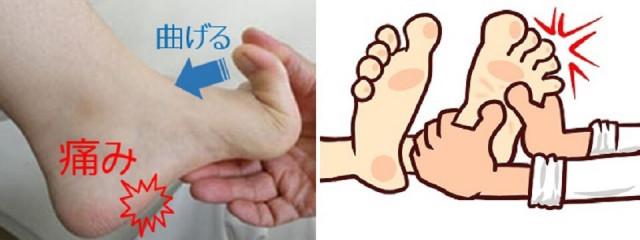 足底筋膜炎チェック方法