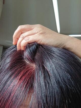抜け毛・薄毛の種類ブログ3
