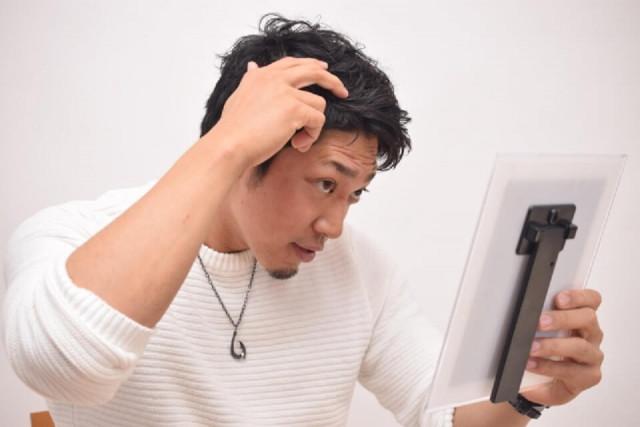 男性型脱毛症ブログ1