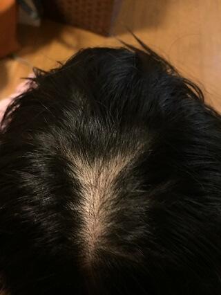 男性型脱毛症ブログ2