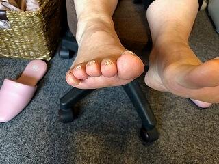 症例ブログ【開張足・中足骨頭部痛】ブログ3