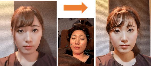 美容鍼ビフォーアフター1