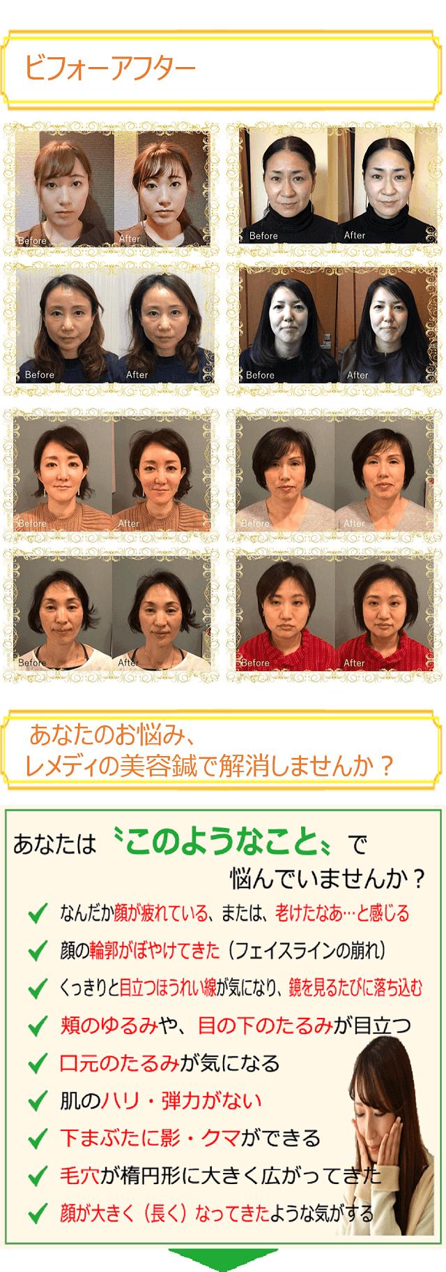 しんきゅうコンパス美容鍼3