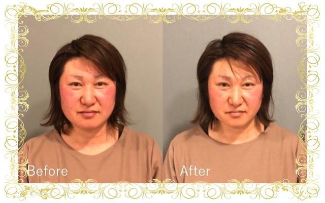 美容鍼ビフォーアフター6