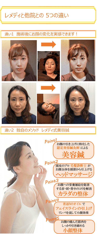 しんきゅうコンパス美容鍼7