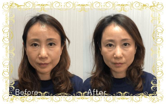 美容鍼ビフォーアフター2